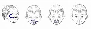 Fisioterapia para reconducir disfunciones orales en la succión y deglución durante la lactancia
