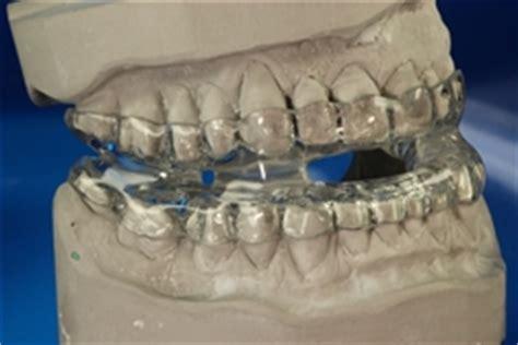 dentes zahntechnik zahntechnik fuer patienten