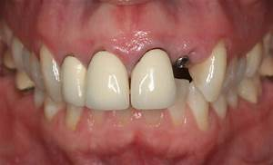 Single implant crown adjacent to metal-ceramic crowns ...