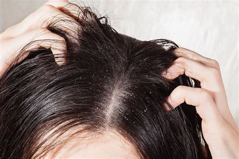 Greasy Hair Surprising Causes Behind Oily Locks Reader
