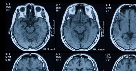 visible bruises domestic violence  traumatic brain