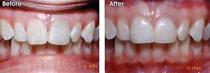 Front Tooth Root Canal Before And After   www.pixshark.com ...