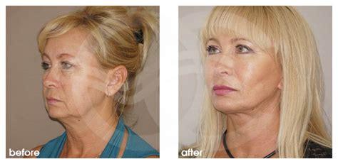 Facelift Vorher Nachher by Gesichtsstraffung Vorher Nachher Bilder Facelifting