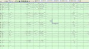 The Eeg  Bipolar Montage  During Behaviorally Defined