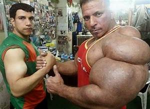 Steroids Gone Too Far | www.pixshark.com - Images ...