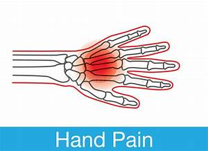 Hand Pain Outline Stock Vector  Illustration Of Anatomy