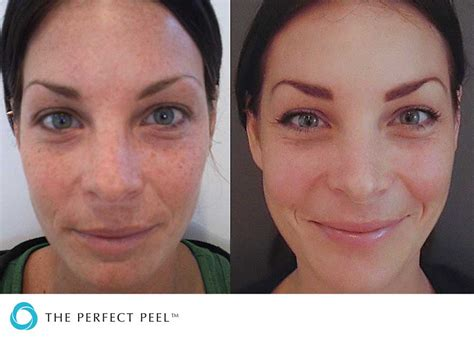 chemical peel for home use