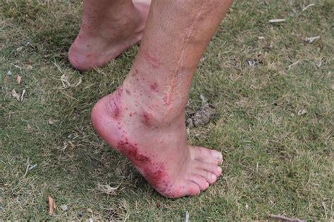 Sore Feet After Wet Shoes Style Guru Fashion Glitz