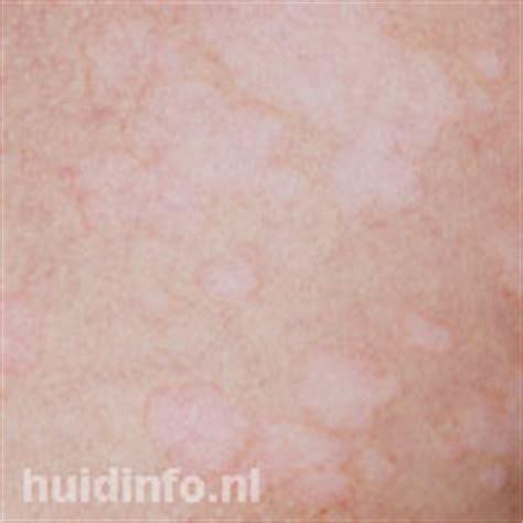 Gladde huid