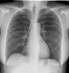 Normal Chest Radiograph