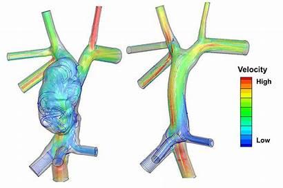 Modeling Computer Flow Repair Between Hearts Energy