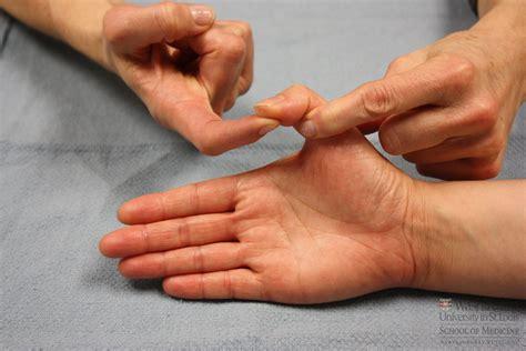 thumb dislocation lockeroom health