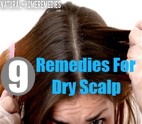 Excessive Hair Shedding Itchy Scalp by 9 Home Remedies For And Itchy Scalp How To Treat