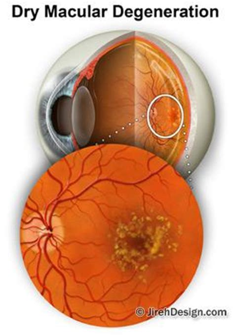 blue light macular degeneration get lutein in your diet for healthy vision and retina strength