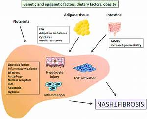 Outline Of The Pathogenesis Of Nash  Signals Generated Inside The Liver