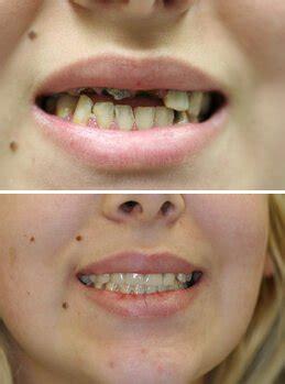 treatment  severe tooth erosion   jersey sdnj