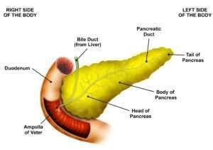 Management of Obstructive Jaundice