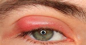 Home Remedies For Pink Eye Natural Cure For Pink Eye