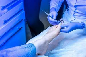 The Abc U0026 39 S Of Ingrown Toenail Surgery   Part C Post