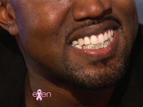 Kanye's Diamond Teeth? Ask A Dentist - Stereogum