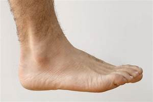 How To Treat A Torn Ankle Ligament  With Pictures
