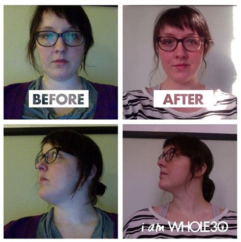 lose weight  stopping antidepressants cqposts