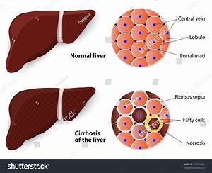 Cirrhosis Liver Normal Liver Structure Liver Stock