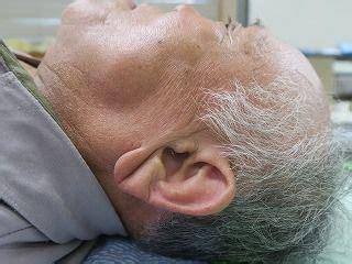 耳たぶ に シワ が ある 人