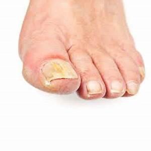 mycose ongle gros orteil