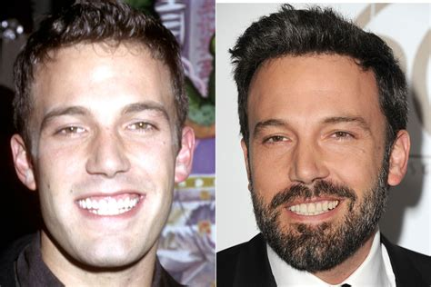 celebrities  dental      toothy