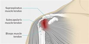 Shoulder Tendonitis - The Complete Injury Guide