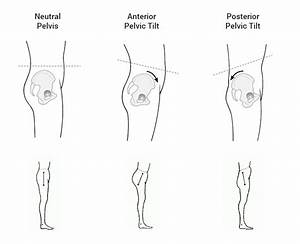 Bow Legged Or Knock Kneed  Causes  U0026 Proven Surgery