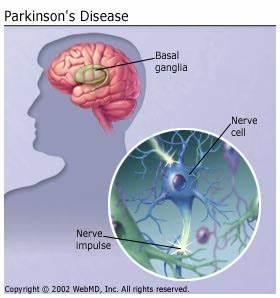 Parkinson U0026 39 S Disease  Parkinsonism Causes  Age  And More