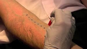 Skin Prick Allergy Test Youtube