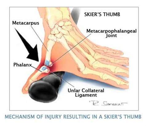 mri newsletter ulnar collateral ligament injury radius