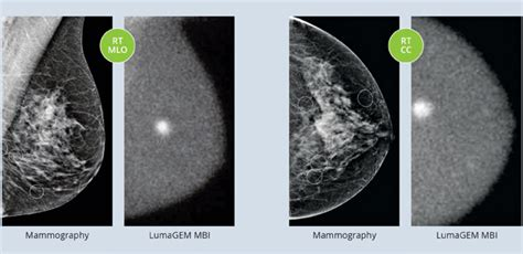 Some insurance companies realize that removal of breast it addresses symptoms, insurance issues, insurance codes, imaging for evaluating symptoms, and went to sergeon and i have a capsulary contractors. The Benefits of Molecular Breast Imaging vs. Mammography in Dense Breasts | Imaging Technology News