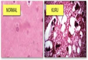 The detailed studies of theses cases of Kuru has helped us understand ... Kuru
