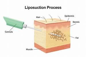 Liposuction - Dallas  Tx