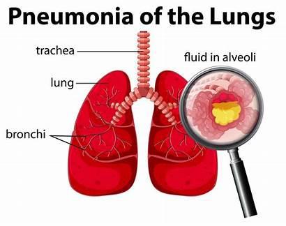Pneumonia Lungs Diagram Illustration Lung Vector Human