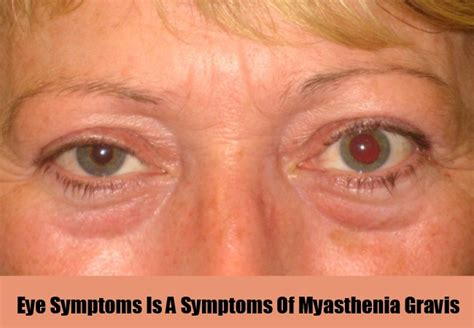 eye problems and remedies
