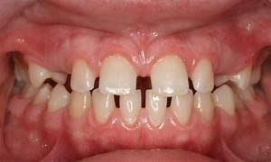 Before & After - Pillar Pediatric Dentistry and ...