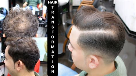 How To Cover Bald Spot With A Haircut★men's Hairstyles ️