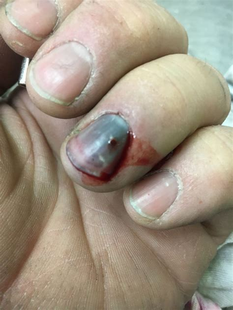 How Drain Your Subungual Hematoma Blood Pocket Under