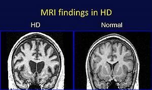 MRI of HD Brain [image] | EurekAlert! Science News