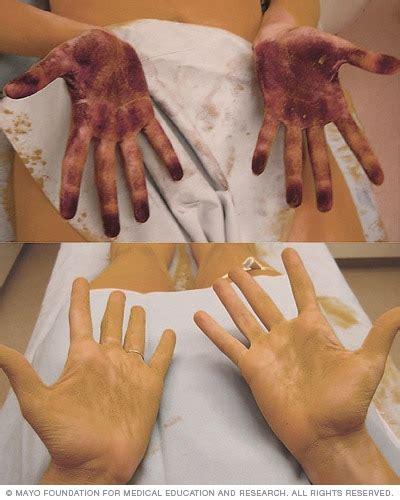 hyperhidrosis diagnosis  treatment mayo clinic
