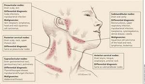 Cervical Lymph Node Anatomy Gallery Human Anatomy Diagram