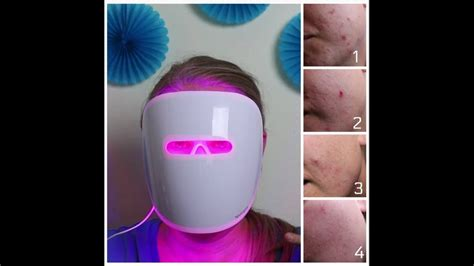 Does It Work: Neutrogena Light Therapy Acne Mask - YouTube