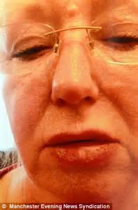 Grandmother suffers allergic reaction to LIP GLOSS | Daily ...