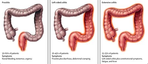 Ulcerative colitis - The Lancet