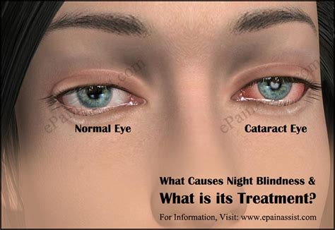 what causes blindness what causes blindness what is its treatment